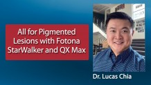 Korumalı: All for Pigmented Lesions with Fotona StarWalker and QX Max – Dr. Lucas Chia